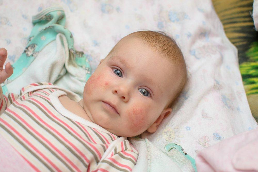 eczema bébé