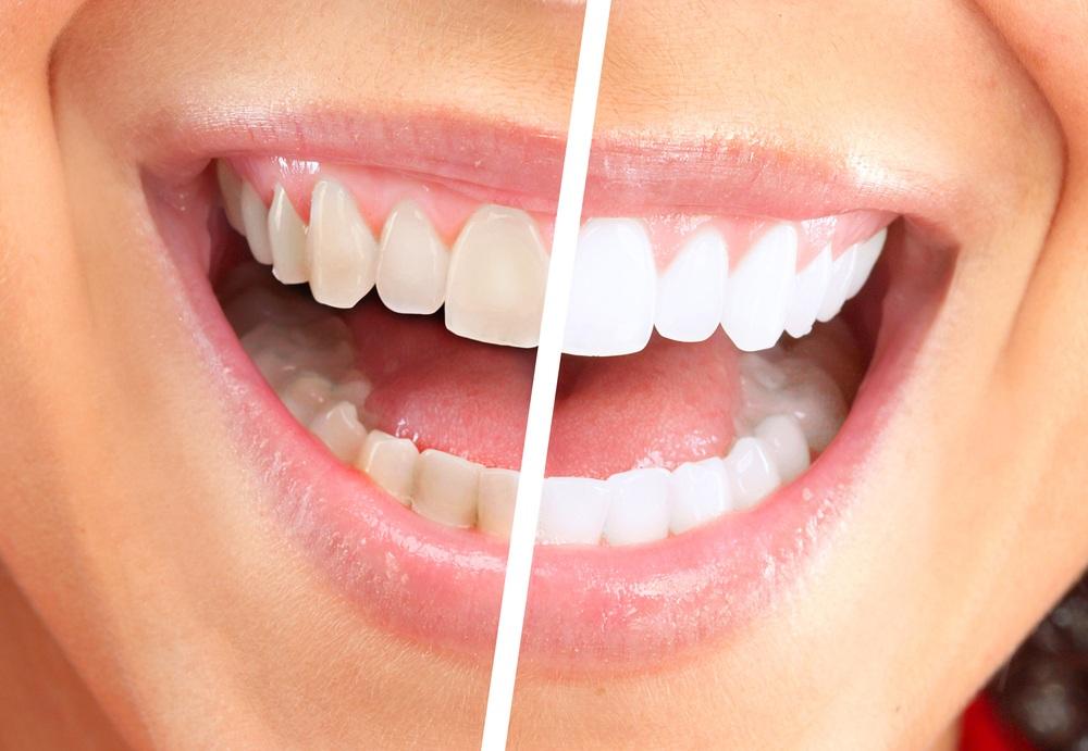 savon de marseille dents