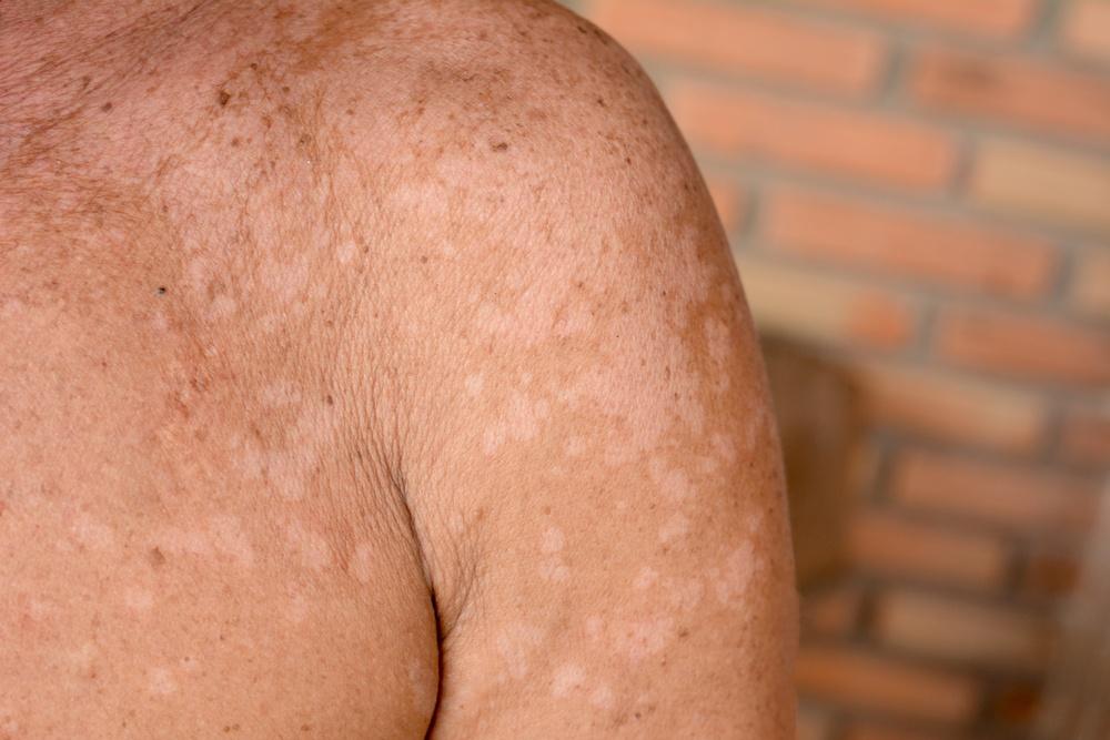 candida albicans peau