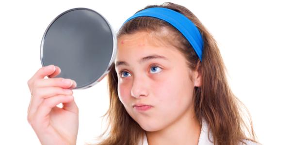 acne-adolescente